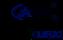 Caro Clinic 40 Year Anniversary Logo